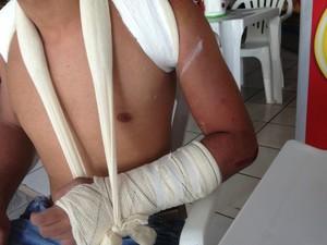 Jackson, que não quis mostrar o rosto, está com braço e clavícula imobilizados. (Foto: Nadyenka Castro)