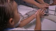 Virose que atinge principalmente crianças preocupa os pais e atenta para a higiene
