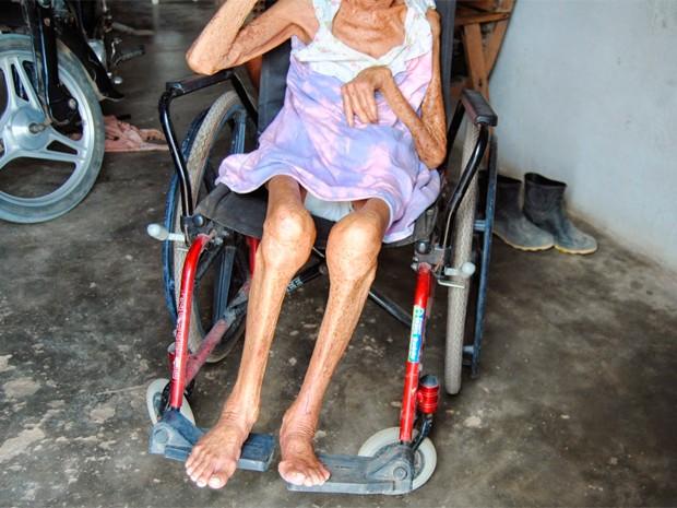 Idosa agredida tem 79 anos e é cadeirante (Foto: Cláudio Dantas/Digital Mipibu)