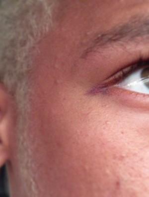 Neymar mostra corte no olho  (Foto: Reprodução / Instagram)