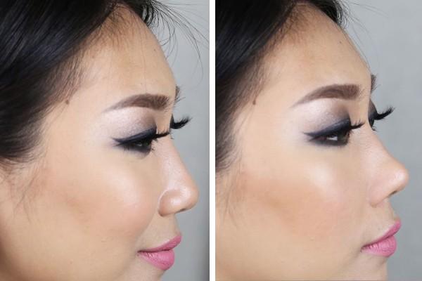 Corretor nasal promete mudar o nariz em segundos (Foto: Reprodução / YouTube)