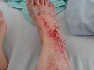 Uma das vítimas ficou com a perna toda machucada (Foto: G1)