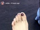 Anitta torce o pé em pleno Carnaval e mostra curativo: 'Estilo novo'