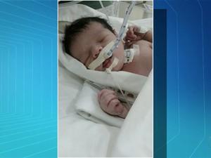 Bebê aguarda por cirurgia que não é feita no Tocantins (Foto: Reprodução/TV Anhanguera)