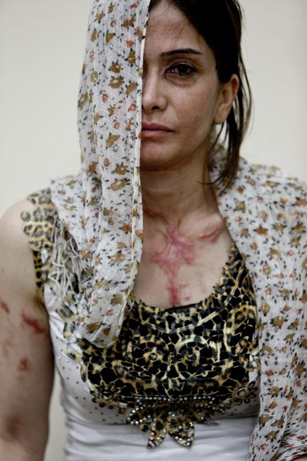 A síria Andi, de 30 anos; ela veio para o Brasil com o marido, após ser atacada com ácido em sua cidade natal. (Foto: Gabriel Chaim/G1)