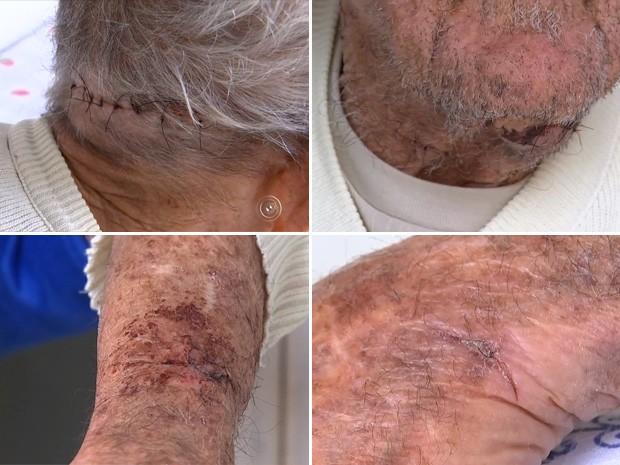 Aposentado de 91 anos se recupera de cortes após crime (Foto: Reprodução/TV TEM)