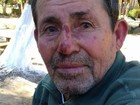 Família procura por idoso com Mal de Alzheimer que fugiu de clínica