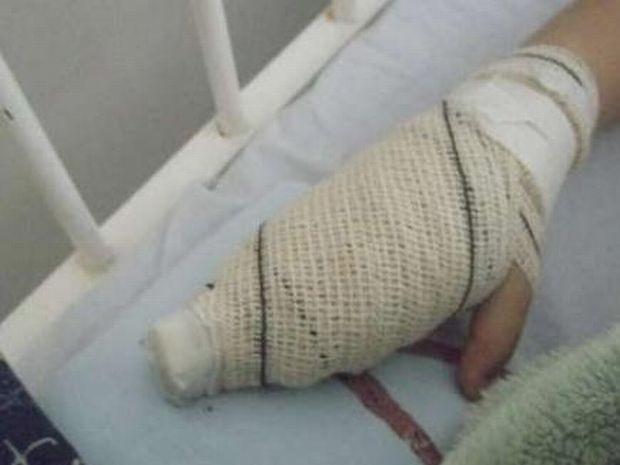 Menino precisou passar por uma cirurgia de reconstrução  (Foto: Divulgação/ Ourinhos Notícias)