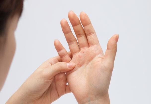 Mistura de três ingredientes ajudam a combater a pele seca (Foto: Think Stock)