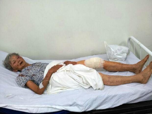 Idosa foi ferida na perna com uma faca durante assalto (Foto: Divulgação / GCM)