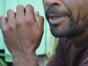 'Tenho 42 anos e já passei por diversos garimpos no Brasil, Colômbia, Venezuela e nas Guianas', diz garimpeiro que trabalha na atividade ilegal desde os 15 anos de idade (Foto: Emily Costa/ G1 RR)