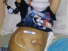 Menino com síndrome rara aguarda cirurgia em SP há quatro anos