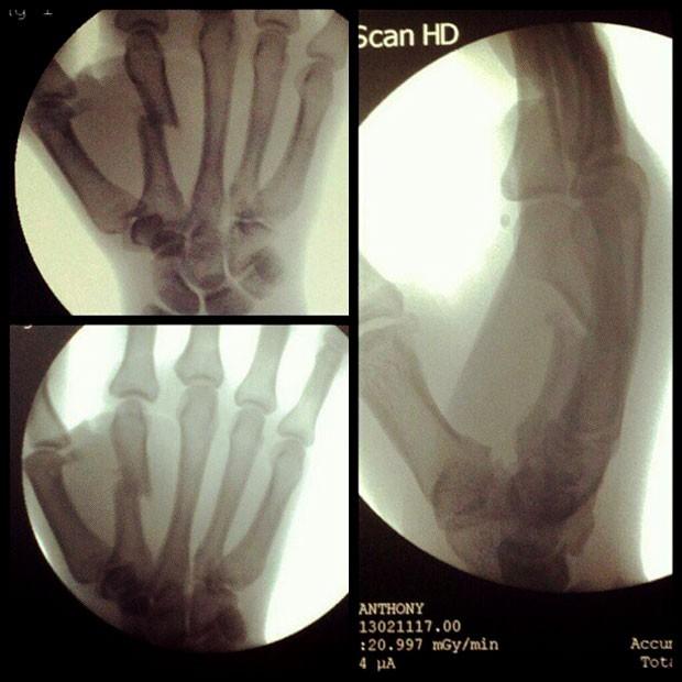 mma Anthony Njokuani mão quebrada (Foto: Reprodução / Twitter)