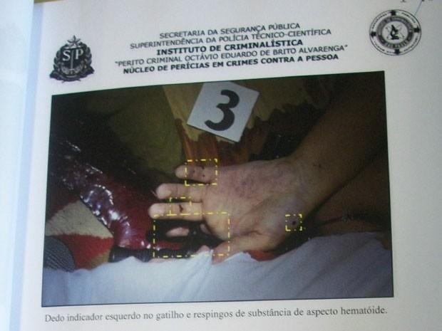 Foto da perícia mostra mão esquerda de Marcelo perto de arma. Advogada quer saber porque há lesões que não foram citadas (Foto: Reprodução)