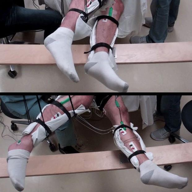 Homem de 42 anos, que estava paralisado, conseguiu movimentar voluntariamente suas pernas graças aos estímulos elétricos  (Foto: Edgerton Lab/UCLA)