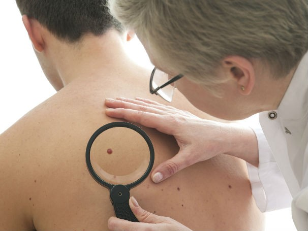 Melanoma (Foto: Thinkstock / Getty Images)