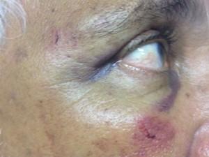 Idoso sofreu escoriações e ficou muito machucado, após agressão em Feira de Santana (Foto: Aldo Matos/Acorda Cidade)