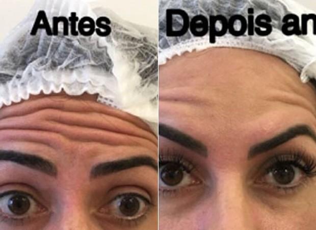 Graciele Lacerda: antes e depois do botox (Foto: Reprodução)