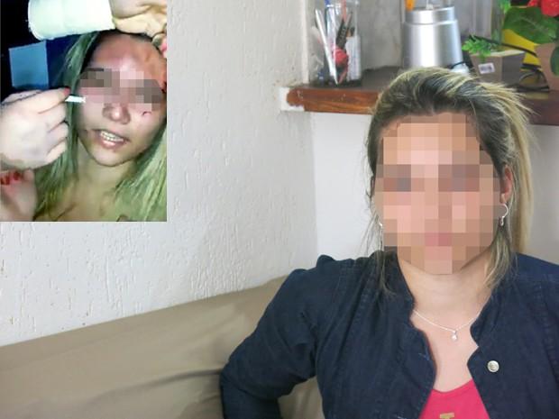Vítima de agressão fala sobre o caso (Foto: Guilherme Lucio/G1)