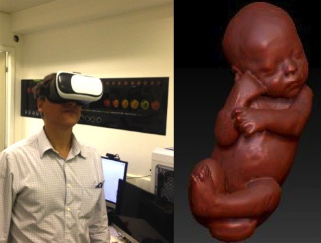 Heron testando a tecnologia da realidade virtual para exploração das imagens intrauterinas (Foto: Arquivo pessoal)