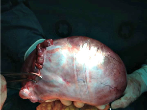No Acre, tumor de 3 kg é retirado de professora que não sabia da doença (Foto: Jakson Ramos/Arquivo Pessoal)