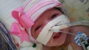 Bebê nasce nos EUA com coração fora do peito e sobrevive após cirurgia (Reprodução)