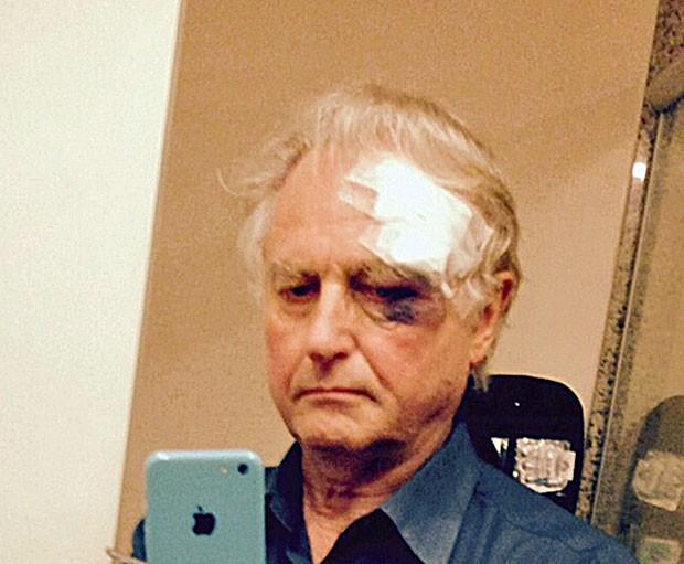 Dawkibns publicou foto com o rosto ferido (Foto: Reprodução/Twitter/RichedDawkins)