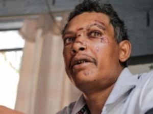 Ajudante geral Mauro Muniz se recupera após ser linchado por moradores em Araraquara (Foto: Deivide Leme/Tribuna Impressa)