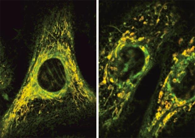 Antibióticos provocam estresse oxidativo nas célulsa, o que leva a dano celular. Por exemplo, nas células saudáveis (esquerda), as mitocôndrias (marcadas em amarelo) são lonas e ramificadas. Mas nas células tratadas com antibiótico (direita), as mitocôndr (Foto: Sameer Kalghatgi e Catherine S. Spina)