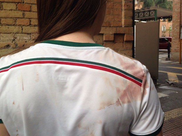 Torcedora do Palmeiras é ferida na barriga após ser agredida por torcedores do Corinthians (Foto: Vivian Reis/G1)