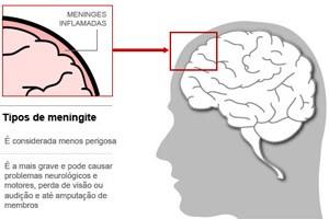 meningite (Arte / G1) (Foto: meningite (Arte / G1))