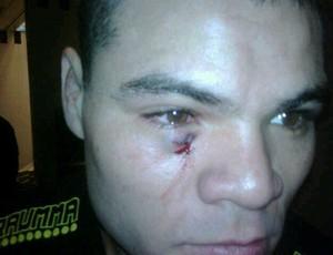 Foto mostra que corte de Wagner Caldeirão não foi no olho, mas abaixo dele (Foto: Reprodução - Twitter)
