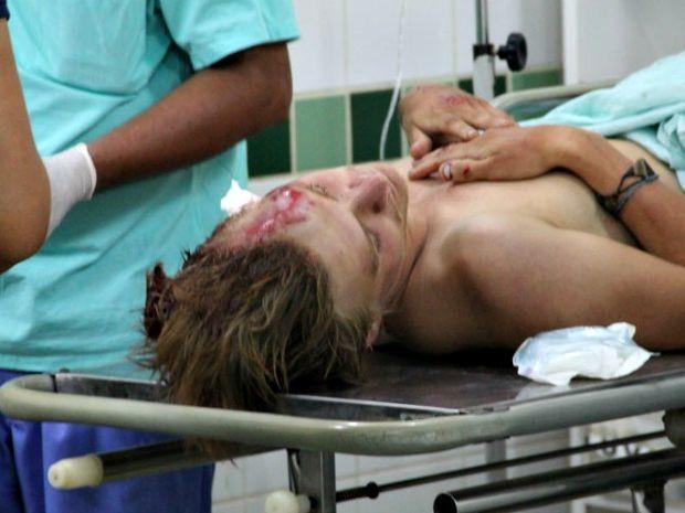 Andreas, de 25 anos, foi encaminhado para o Pronto-Socorro em Rio Branco com traumatismo craniano  (Foto: Alexandre Lima/Arquivo pessoal)