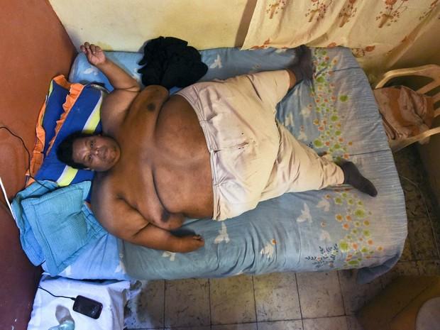 O colombiano Oscar Vasquez Morales, de 44 anos, é conhecido como o homem mais obeso do país. pesando 400 kg, ele agora se prepara para começar um tratamento com o objetivo de emagrecer 300 kg em três ou quatro anos (Foto: Luiz Robayo/AFP)