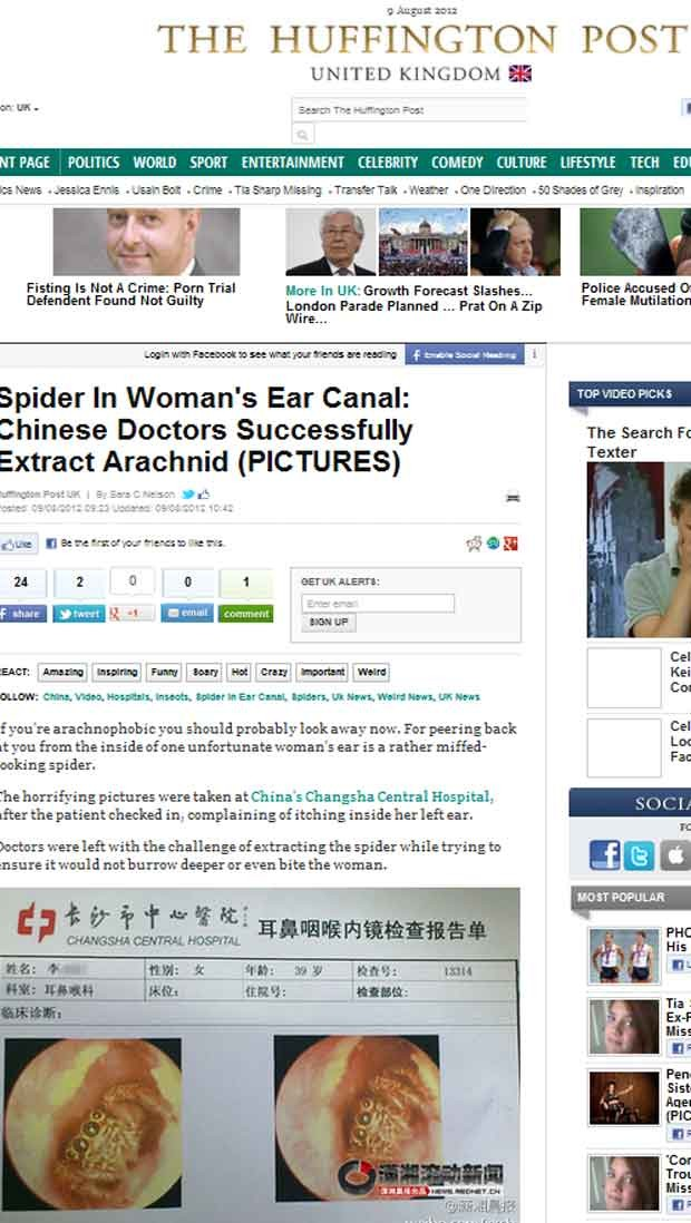 Aranha retirada de paciente na china (Foto: Reprodução)