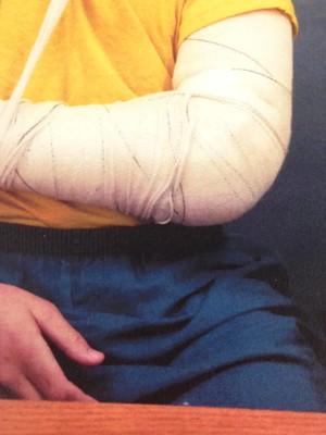Adolescente interno da Fundação Casa com marcas de agressão  (Foto: Defensoria Pública)