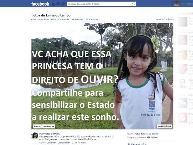 Acreano faz campanha de sensibilização no Facebook para conseguir cirurgia para a filha deficiente auditiva (Foto: Reprodução/Facebook)