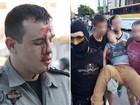 PMs e estudantes ficam feridos em protesto contra OSs na Educação