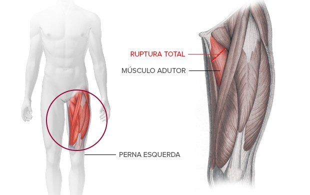 info lesão do ronaldinho (Foto: arte esporte)