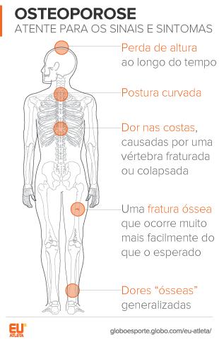 EuaAtleta Ortopedia Osteoporose Sintomas (Foto: Eu Atleta)