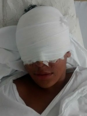 Menino está internado na ala de queimados de hospital (Foto: Firmina da Silva/Arquivo Pessoal)