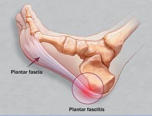 fascia plantar (Foto: Divulgação)