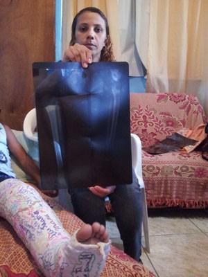 Mãe de menino mostra exame: Daniel sofreu duas fraturas (Foto: Guilerme Brito/G1)