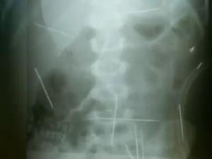 Radiografia mostrou agulhas no corpo de criança; caso ocorreu em Ibotirama, na Bahia (Foto: Reprodução/TV Globo)