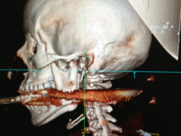 Imagem do arpão na cabeça de Elisangela, divulgada pelo Hospital de Araruama (Foto: Divulgação)