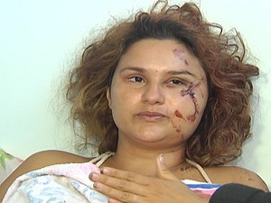 Ana Paula, vítima de acidente na BR-230, em Itaituba (Foto: Reprodução/TV Tapajós)