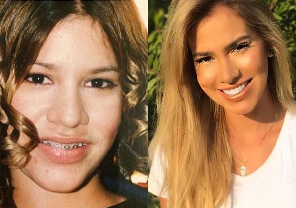 Antes e depois de Adriana Santanna (Foto: Reprodução/Instagram)