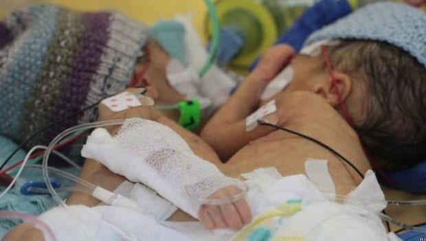 Lydia e Maya antes da sepração: uma tinha pressão alta, por ter muito sangue em circulação  (Foto: BBC)