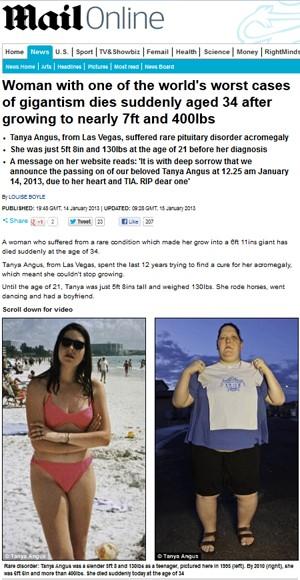"""Tanya Angus, vítima de um dos piores casos de gigantismo já registrados, segundo o jornal 'Daily Mail' (Foto: Reprodução/""""Daily Mail"""")"""