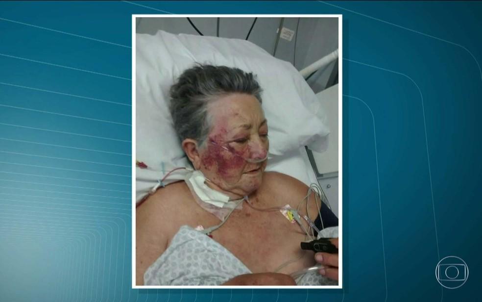 Idosa foi agredida na UTI por enfermeiro em SP (Foto: Reprodução/TV Globo)